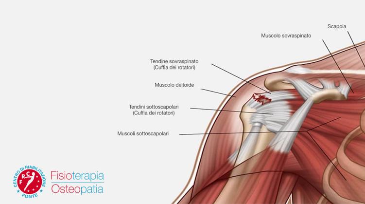 Tendinite della spalla esercizi e terapia