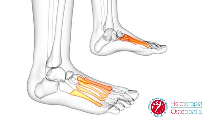 Artrosi caviglia rimedi