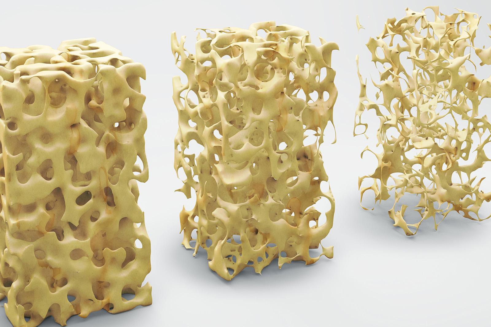 Cosa è l'Osteoporosi